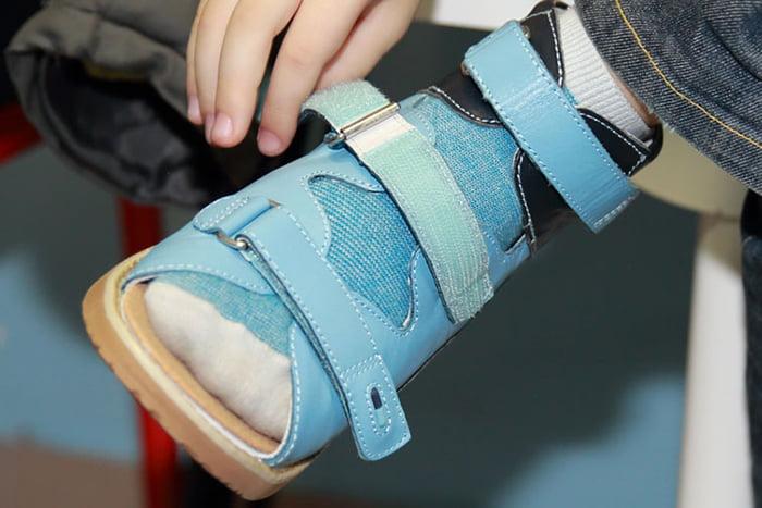 Ортопедическая обувь у ребенка