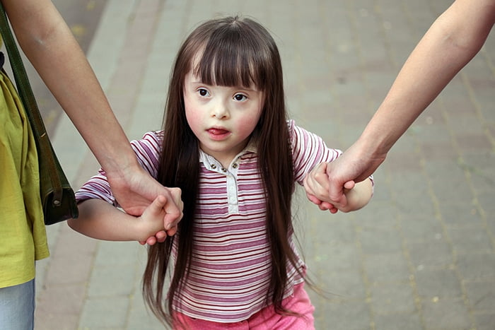 Девочка с отставанием в развитии