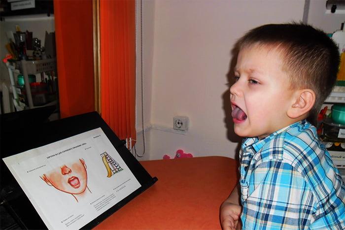 Ребенок делает гимнастику для языка